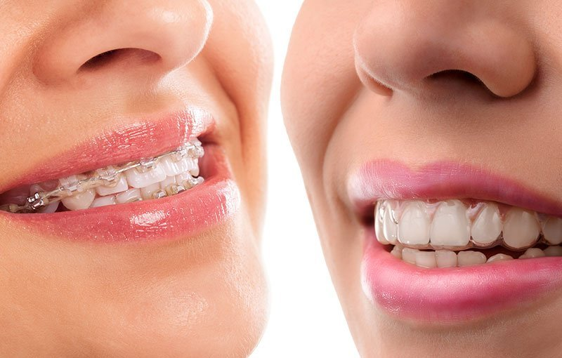 Will Your Invisalign Be Quick In Revealing The Results?